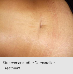 Dermaroller Treatment
